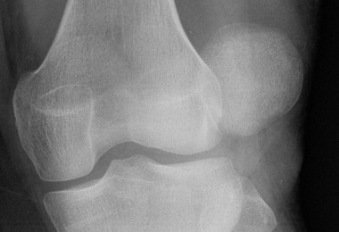 Radiografie la genunchi cu osteoartrita